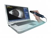 Ultrazvukový přístroj B-Scan Plus