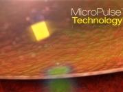 Lasery Iridex - technologie MicroPulse