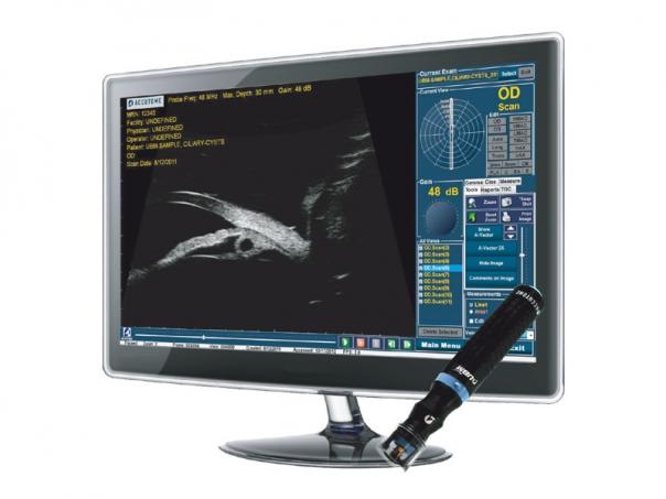 Ultrazvukový přístroj UBM